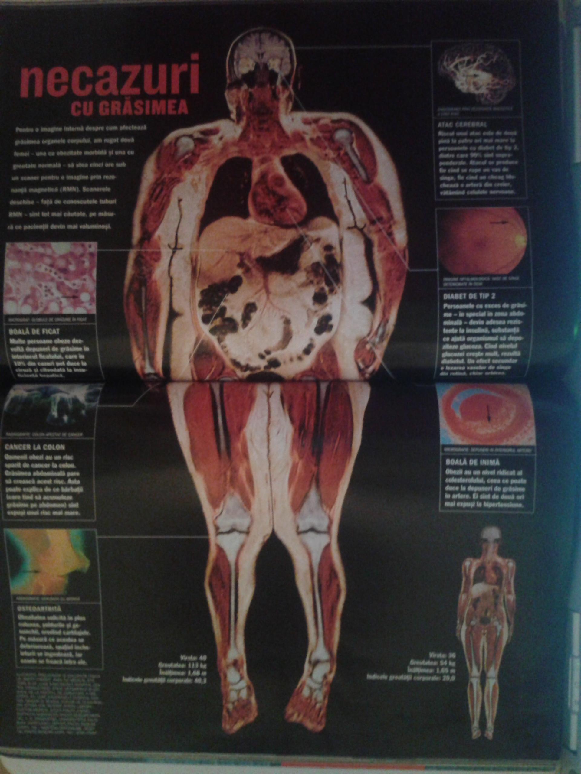 inulina elimină grăsimea internă)
